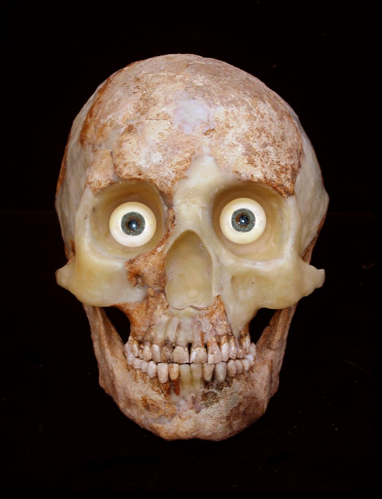 a photo of a partially reconstructed skull
