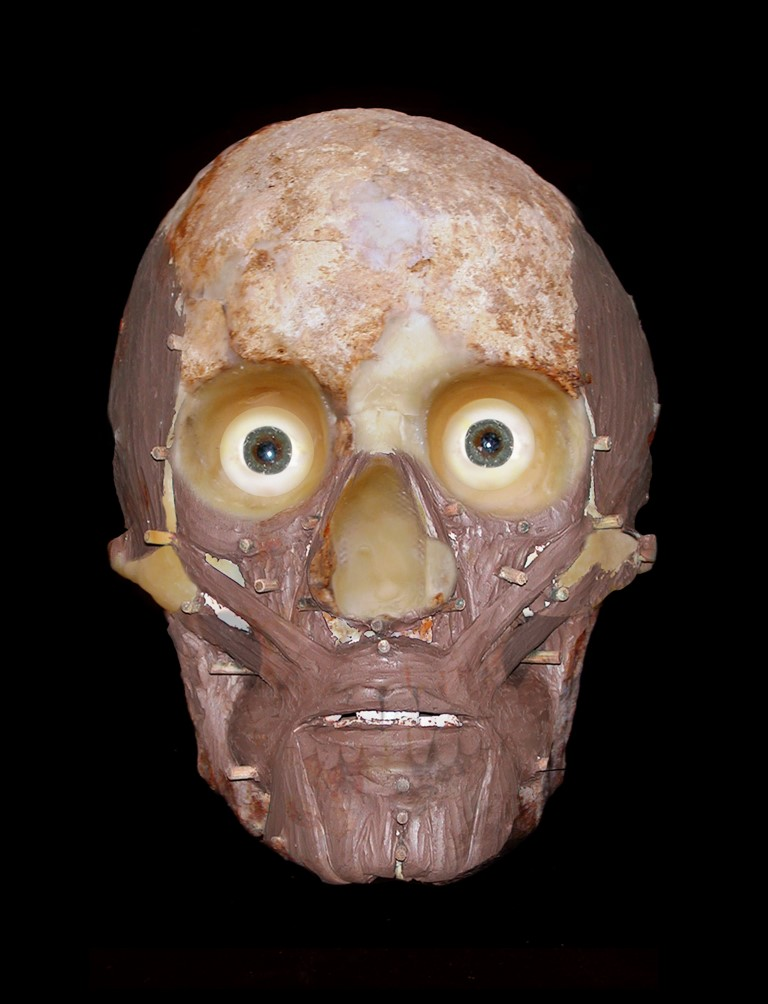 a photo of a partially reconstructed skull with muscles and sinew