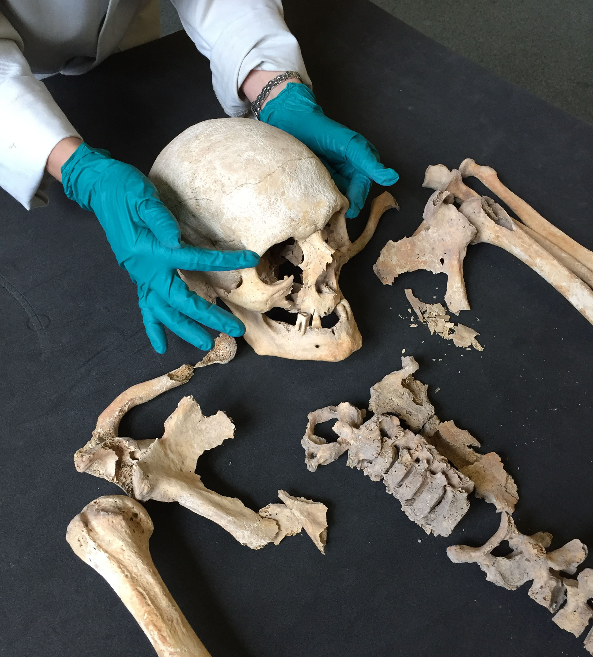 A photo of a pair of hands resting on a skull