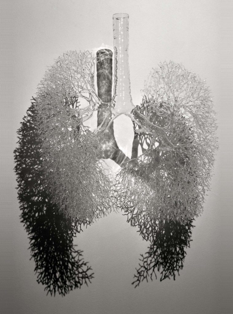 a photo of a model of the arteries in a pair of lungs