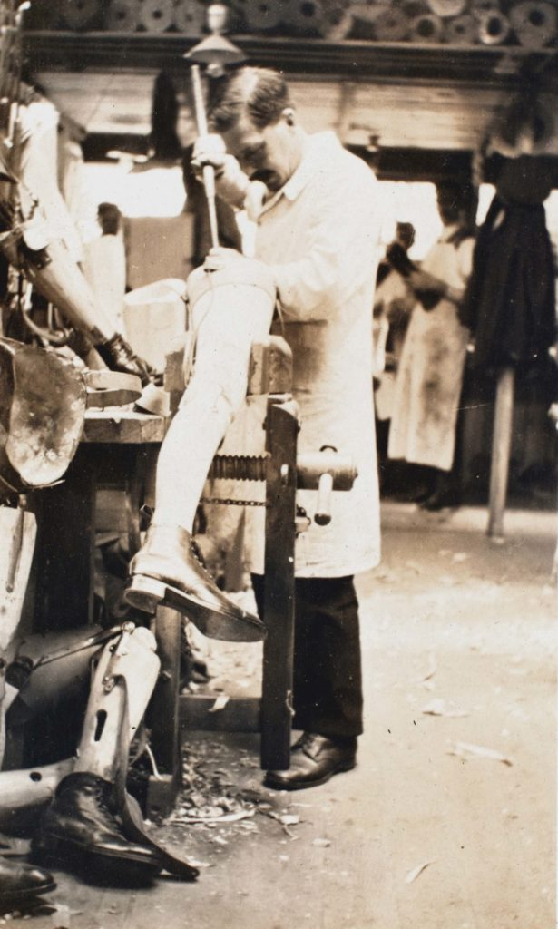 a photo of a man with moustached working on a prosthetic leg