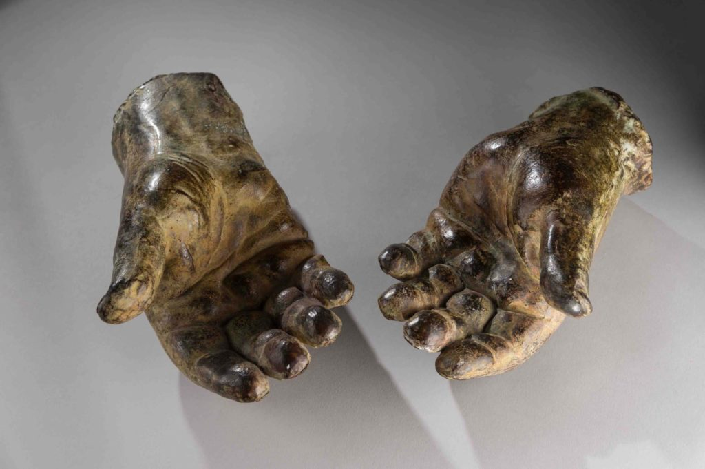 a photo of a pair of cast hands