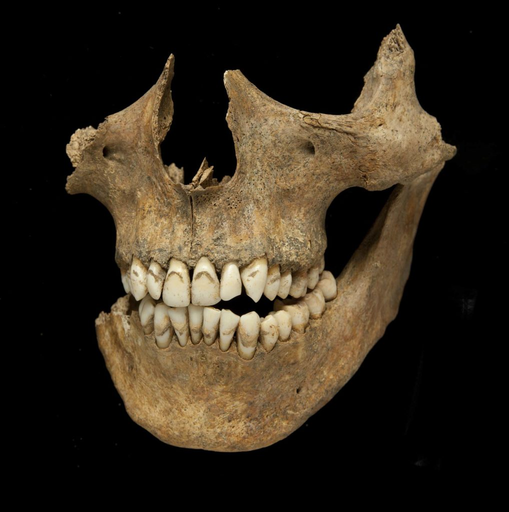 a photo of a lower part of a skull