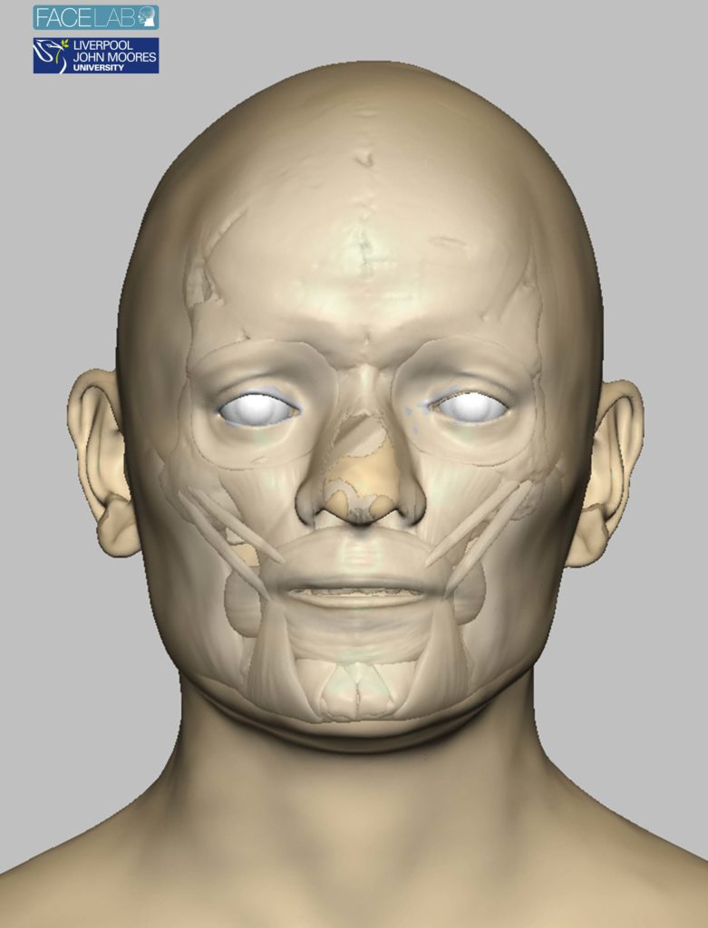 a computer photo of reconstructed skin and bone over a face