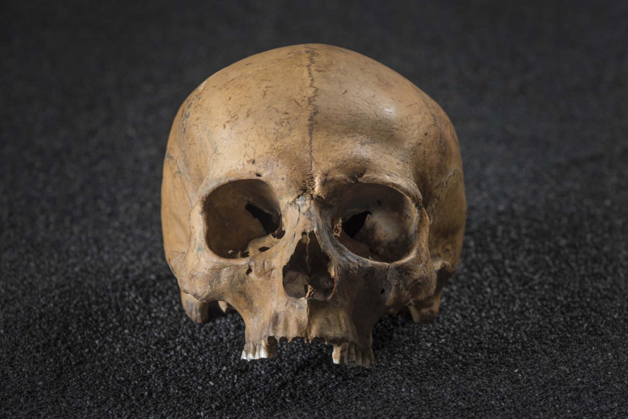 a photo of a skull