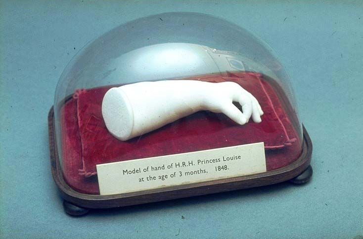 a photo of a domed case containing a sculptured arm