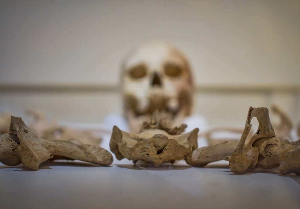 a photo of a skull and skeleton in a display case