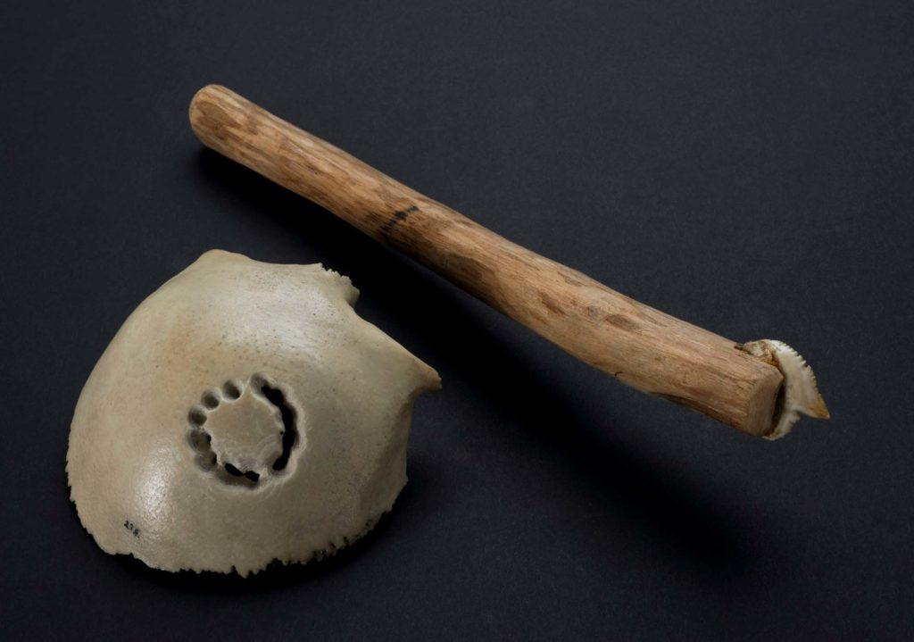 a photo of a piece of skull with holes in it resting next to a wooden shafted tool with tooth at the end