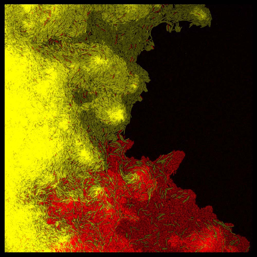a photo of a red and yellow bacteria against a black background