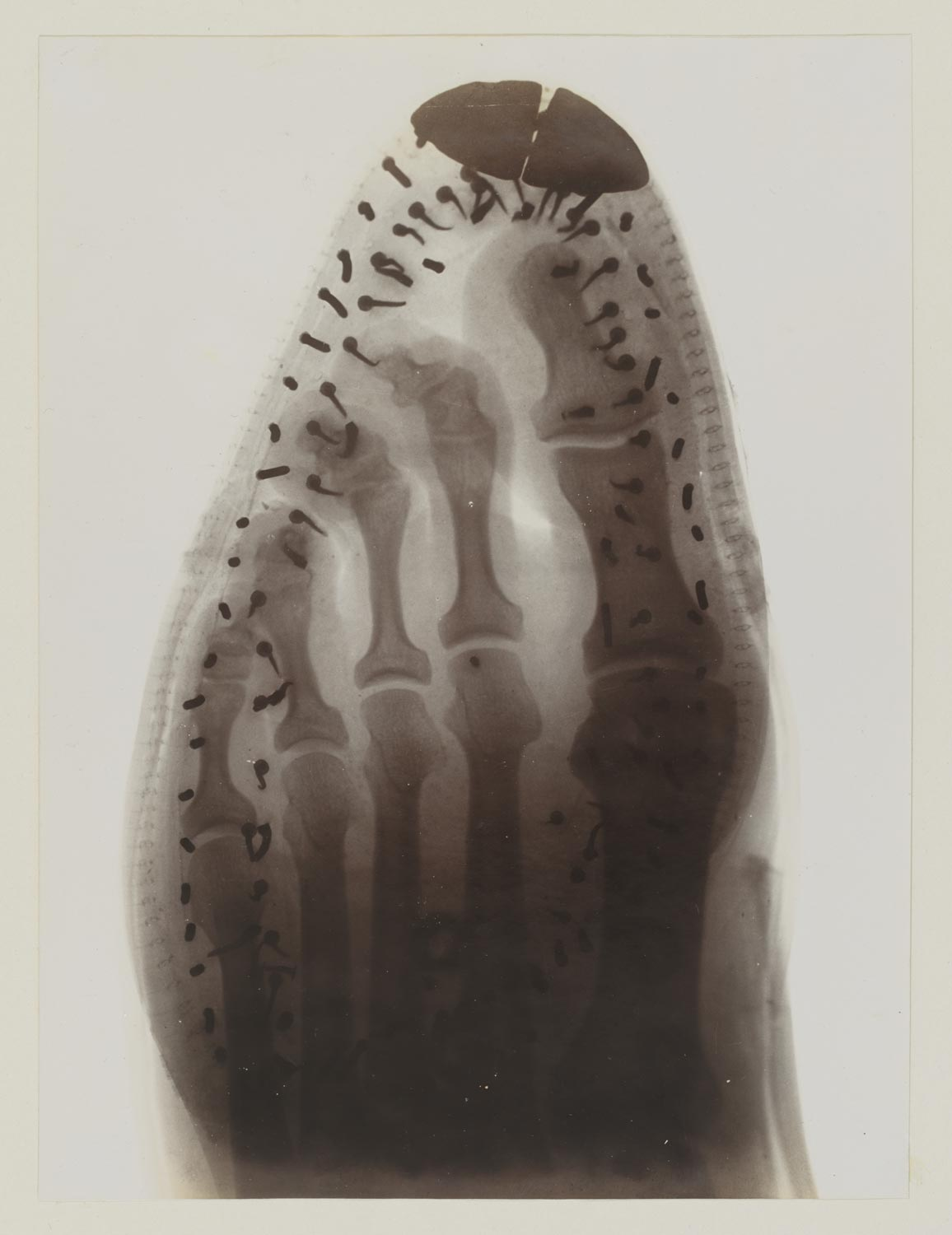 x-ray image of a foot in a shoe, the toe cap and nails holding the shoe together are visible