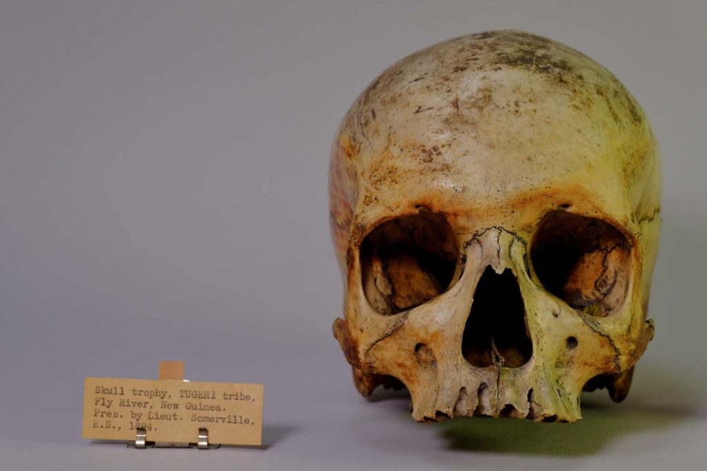 photo of a humna skull with handwritten label next to it